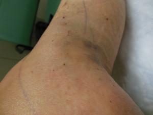 Surgery Leg