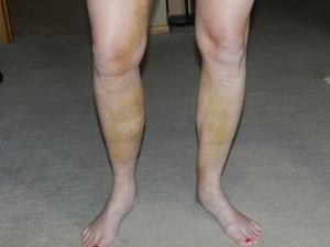 Surgery Legs day 9
