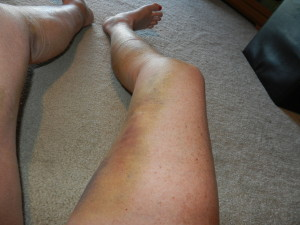 Surgery Legs day 9