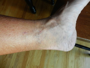 left ankle - hard to see the bruise