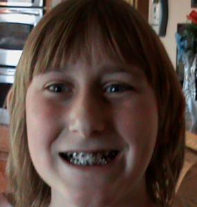 Look - braces!
