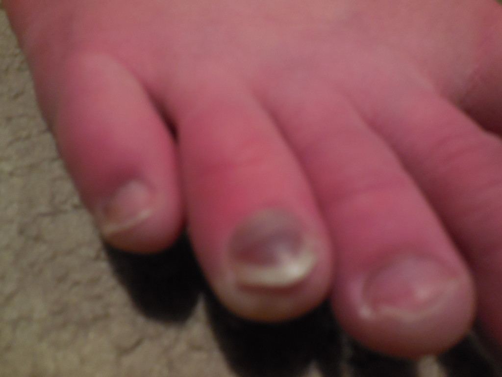 skip the long toenail (he has issues!!!) - check out the black!